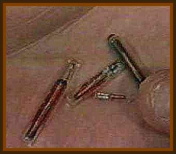 Alien Implants - Proof of Alien Abductions