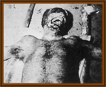 Human Mutilation Factor